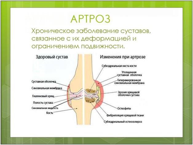 Могут ли суставы болеть от позвоночника thumbnail
