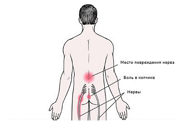 Болит спина в области поясницы невролог thumbnail