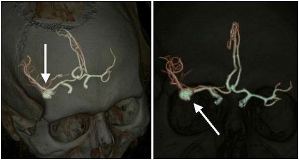 Магнитно резонансная ангиография шейного отдела позвоночника