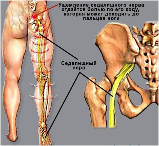 Упражнение для позвоночника если немеет нога thumbnail