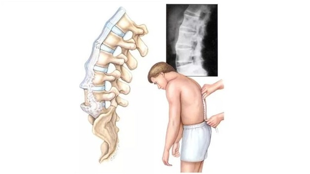 Боли в позвоночнике и крестцовой области лечение
