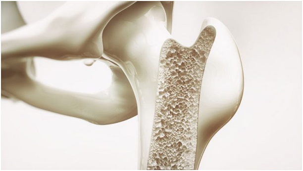 Денситометрия костей: что это такое, как проводят, подготовка к обследованию