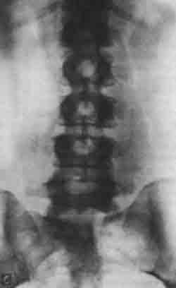 Что показывает рентген пояснично-крестцового отдела позвоночника в 2, 3 проекциях и с функциональными пробами (видео как делают рентгенографию)