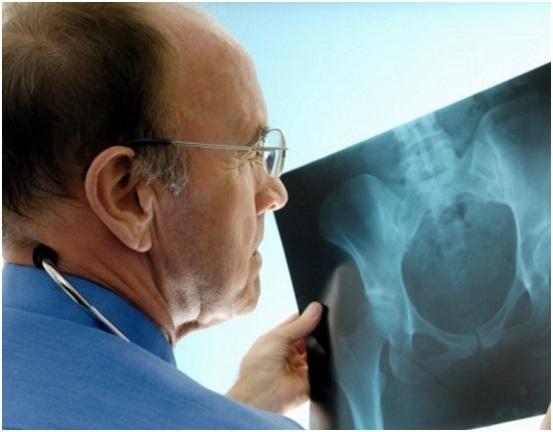Как делают рентген поясничного отдела позвоночника