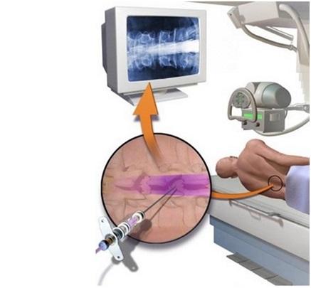 Что такое миелография позвоночника, методы проведения процедуры