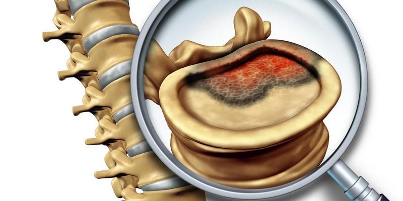 Рак кости болит спина