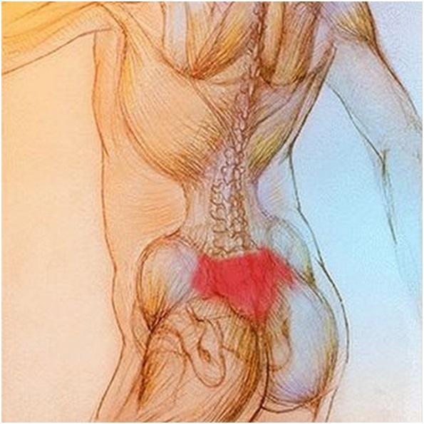 Боль в пояснично-крестцовой области: диагностика и лечение