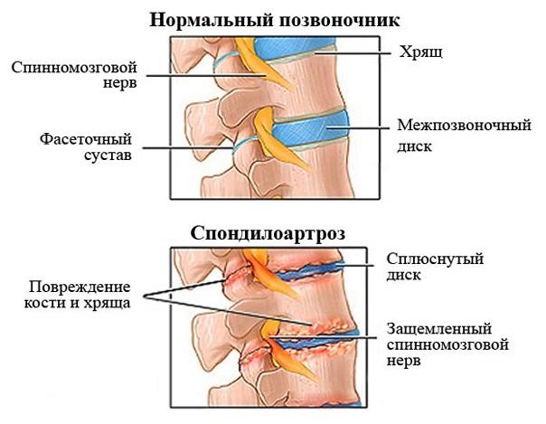 Поясничный спондилоартроз - причины, симптомы, диагностика и лечение