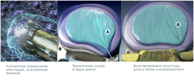 Холодноплазменная нуклеопластика межпозвонковых дисков отзывы