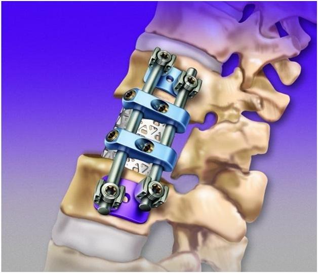 Замена межпозвоночного диска осложнения реабилитация