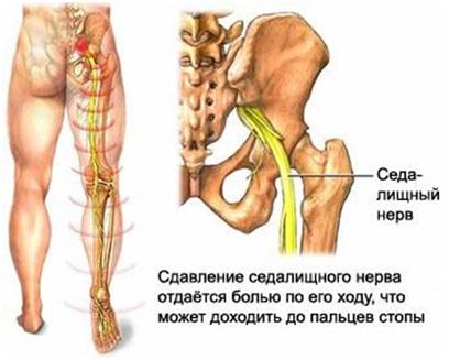 Боль внизу спины отдает в ноги у женщин причины и лечение
