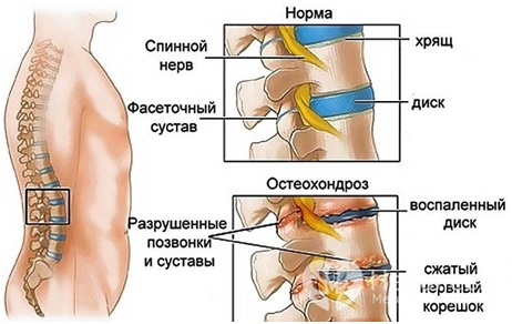 Мкб 10 мкб остеохондроз поясничного отдела Поясничный отдел позвоночника