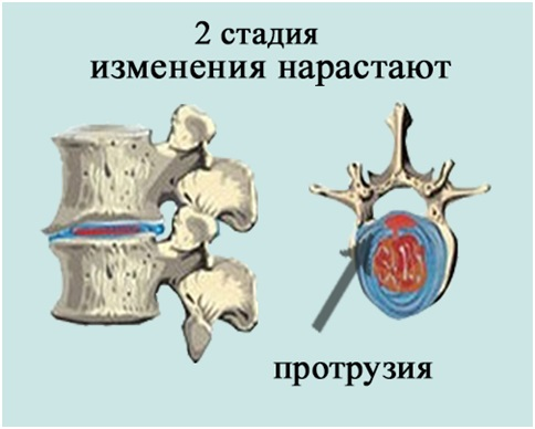 Мазь конская для лечения суставов